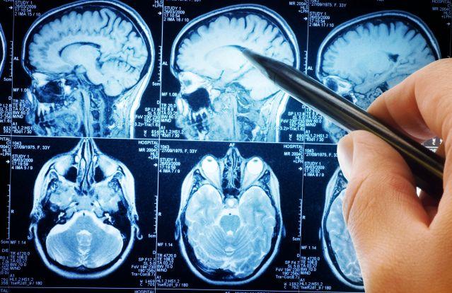 Triff_Brain_MRI